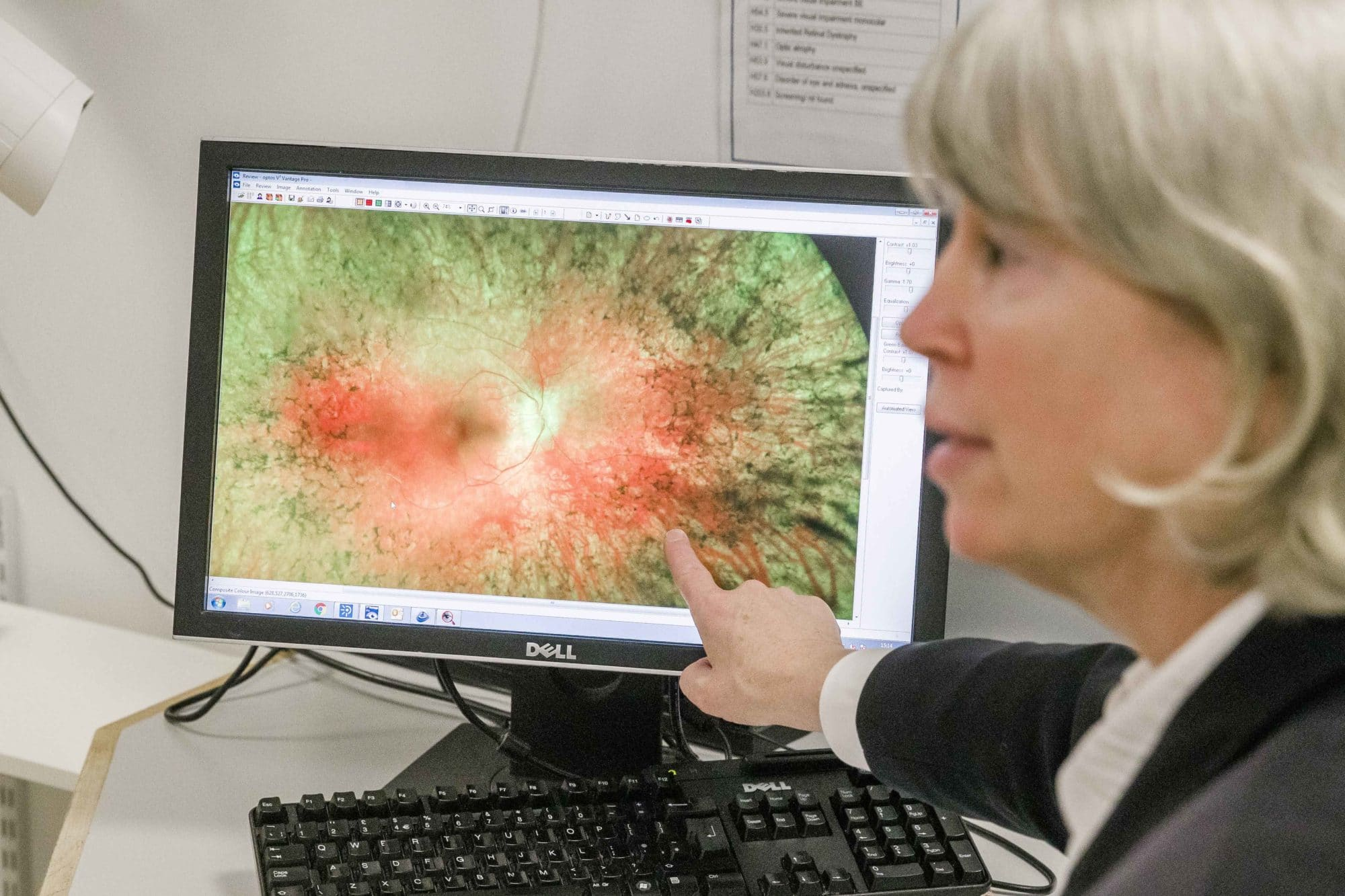 consultant pointing at image on fundus on computer